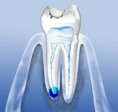 Erkrankungen des Zahnnmark (Pulpa) können erfolgreich mit einer Wurzelkanalbehandlung therapiert werden.
