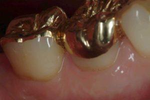 Zahnersatz - Goldteilkronen