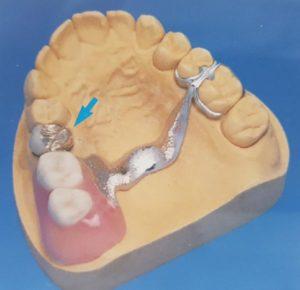 Zahnersatz - Teilprothese