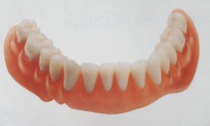 Zahnersatz - Totalprothese