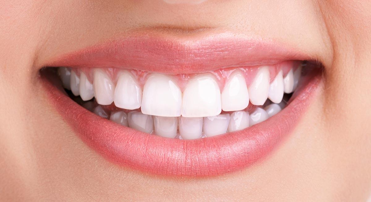Zahnarzt Hennef - Bleaching (nachher)