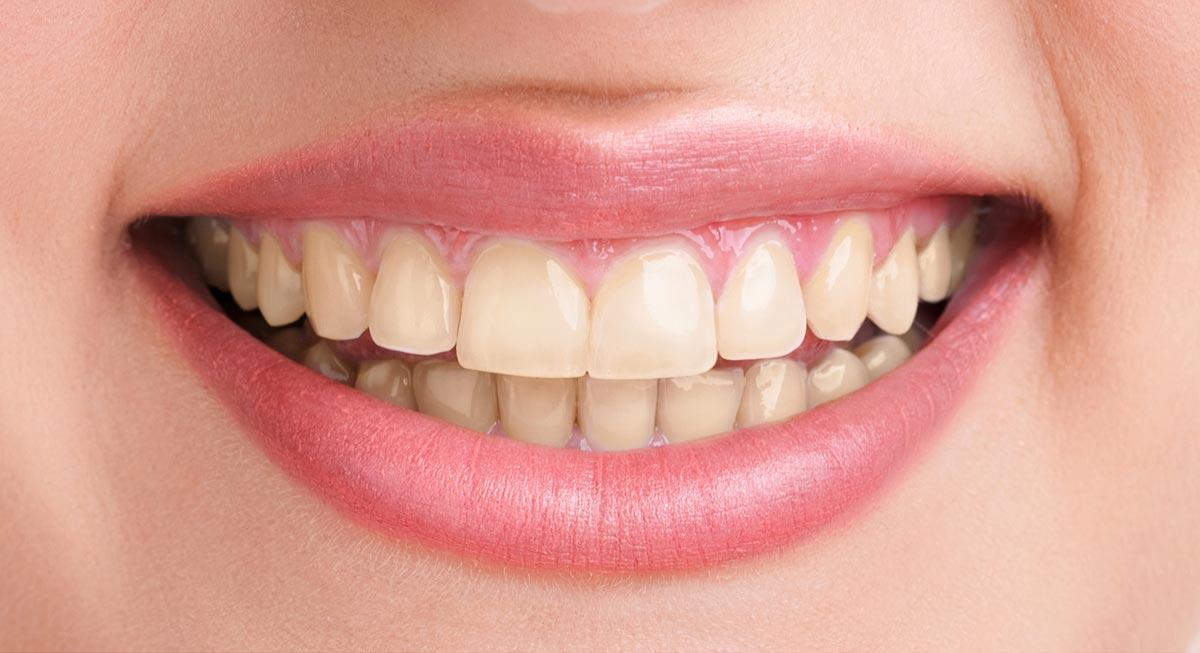Zahnarzt Hennef - Bleaching (vorher)