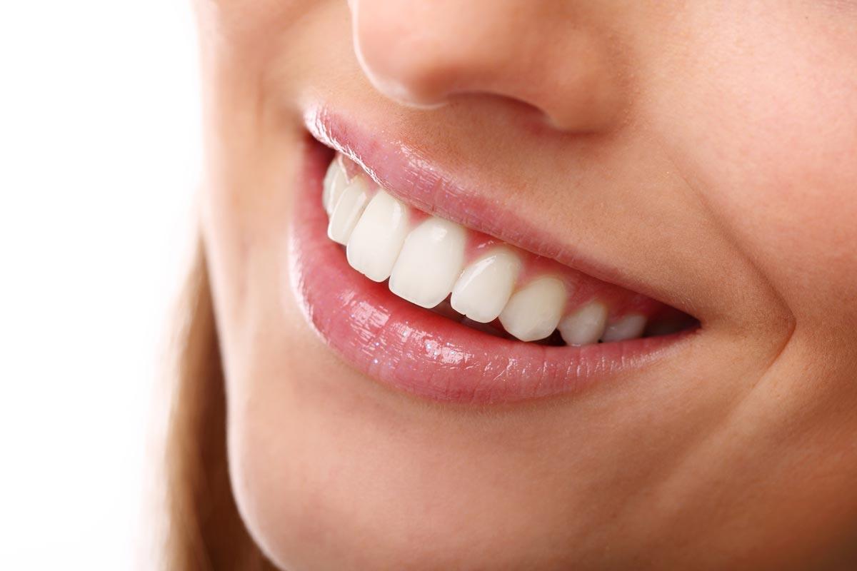 Zahnarzt Hennef - Contouring