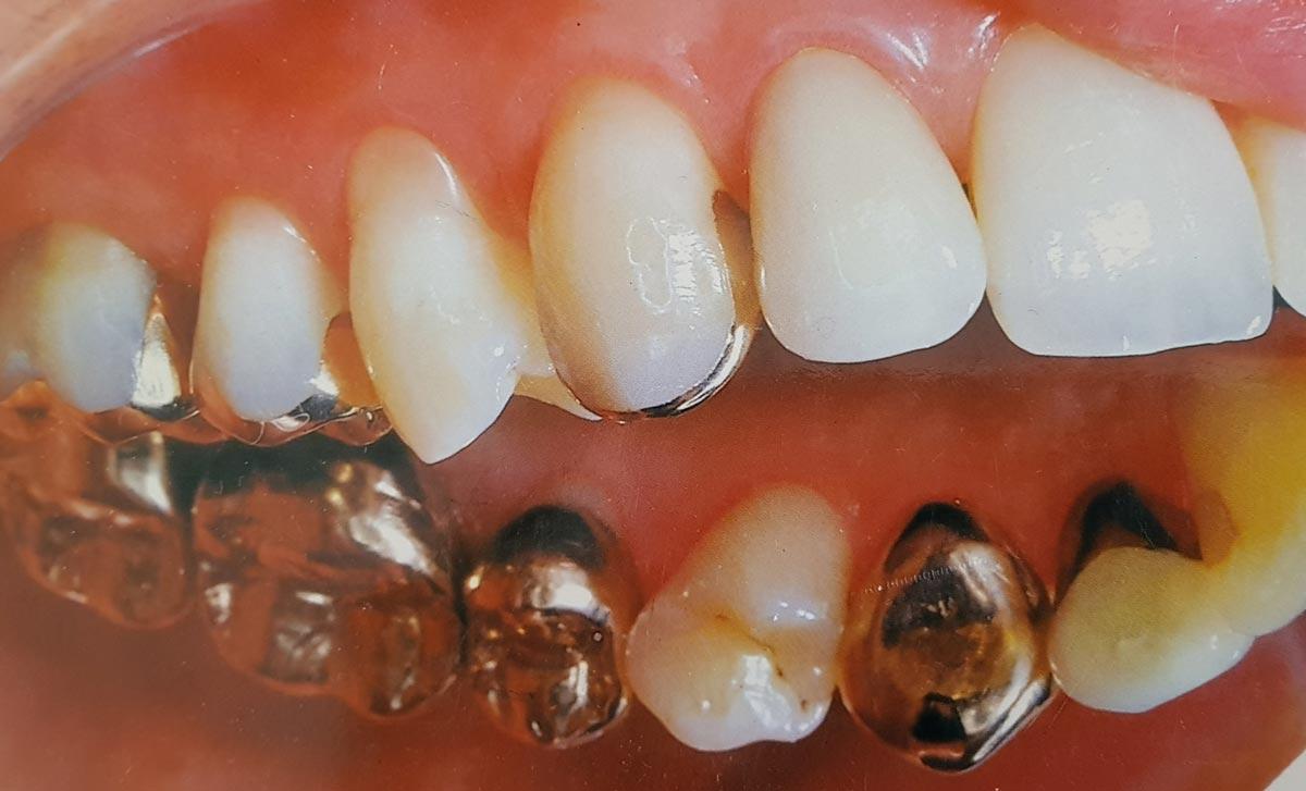 Zahnarzt Hennef - Goldrestauration