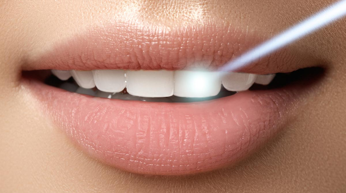 Zahnarzt - Hennef - Laserbehandlung