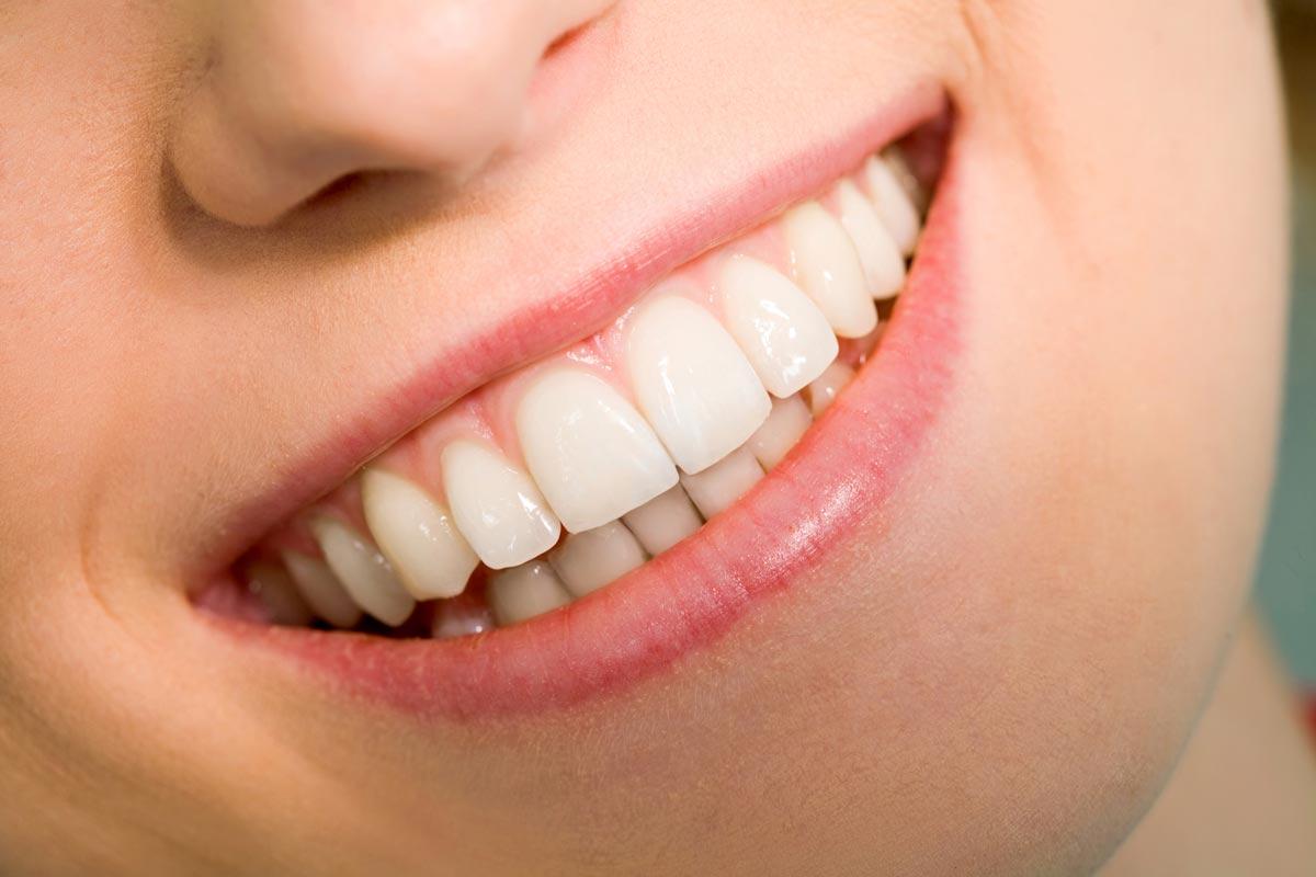 Zahnarzt Hennef - Rezessionsdeckung