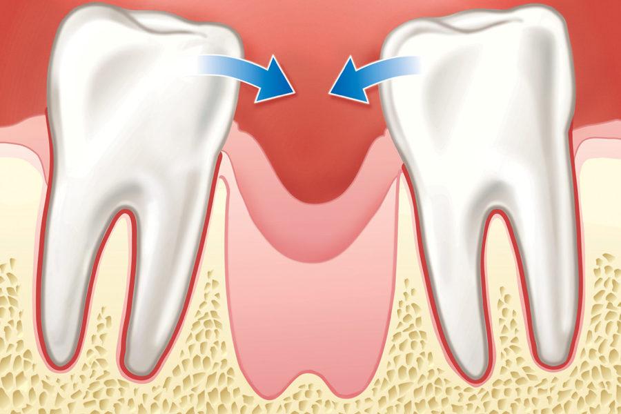 Ohne Knochenaufbau kippen die Zähne in die Lücke