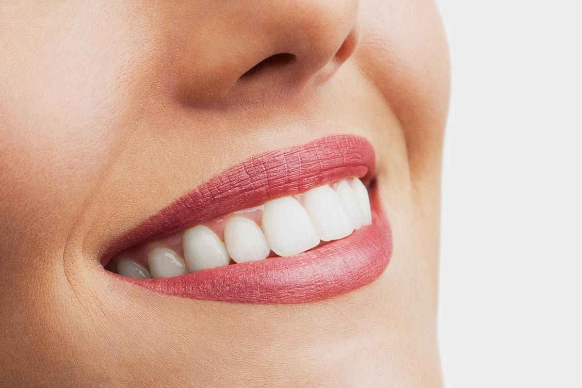Zahnarzt Hennef Implantologie