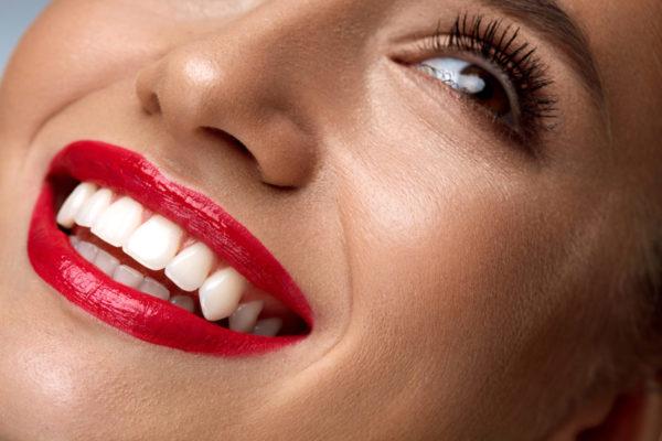 Zahnarzt Hennef - Veneers