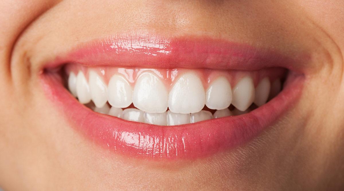 Zahnarzt Hennef - Zahnfleischbehandlung